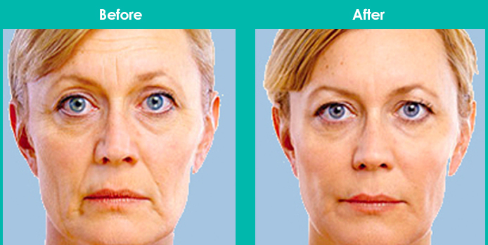 This image has an empty alt attribute; its file name is juvederm-before-after.jpg