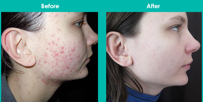 This image has an empty alt attribute; its file name is laser-acne-removal-before-after.jpg