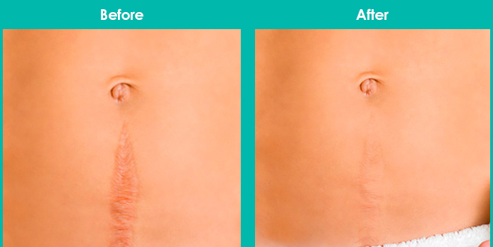 This image has an empty alt attribute; its file name is laser-scar-removal-before-after.jpg